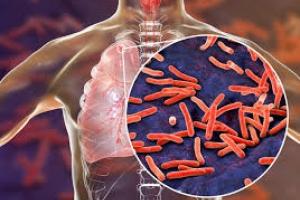 «Победим туберкулез вместе»